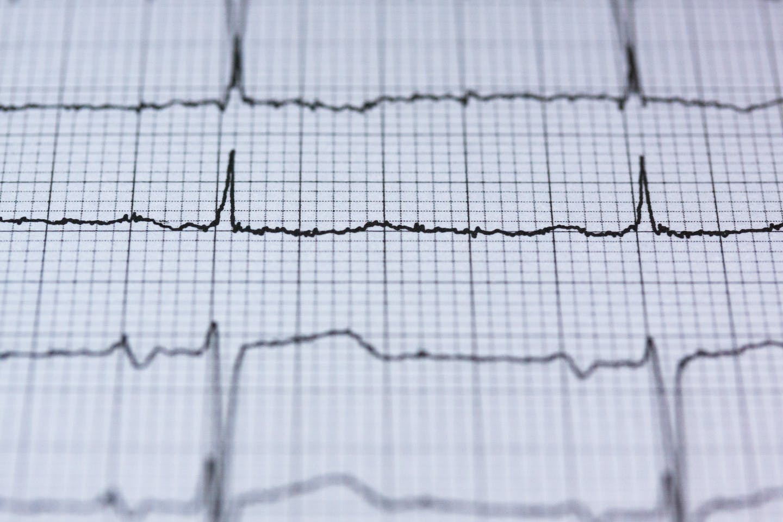 heart checks